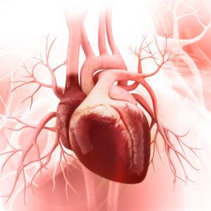 A-Fib heart