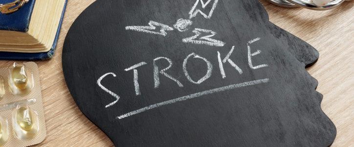 stroke drawing