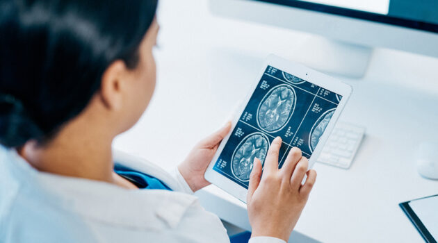 Photo of person holding X-Ray Image